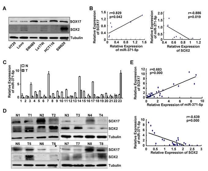 Expression correlations of miR-371-5p with SOX17, SOX2 in CRC cell lines and tissues.