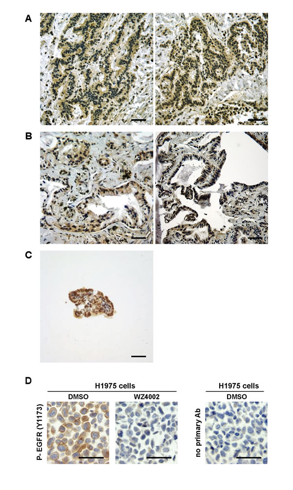 Activated EGFR in human adenocarcinomas of the middle ear and ELSTs.