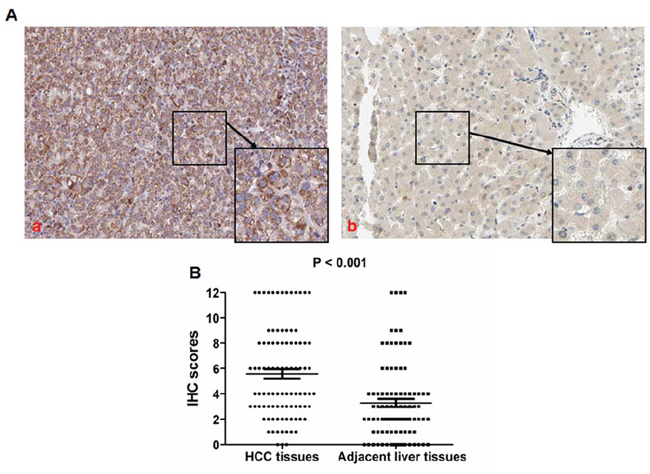 TIMP-1 expression is up-regulated in HCC tissues.