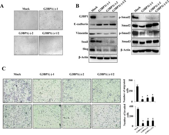 Downregulation of G3BP1 suppresses the mesenchymal phenotype of 4T1 cells.