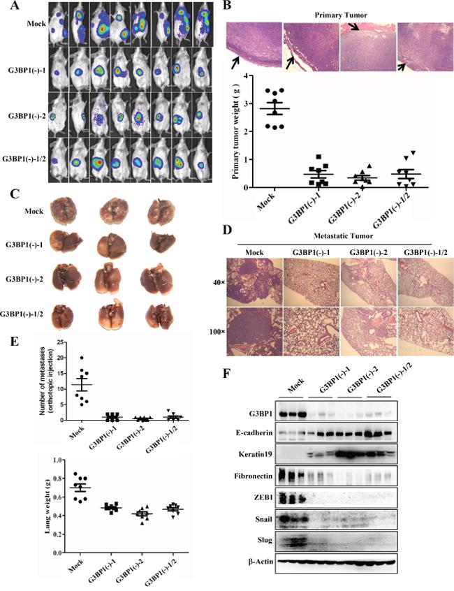Downregulation of G3BP1 inhibits tumor metastasis in vivo.