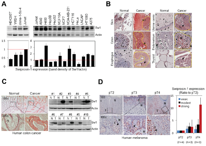 Upregulation of Swiprosin-1 in cancer cell lines and human cancer tissues.
