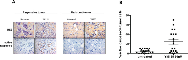YM155 induces cell death in primary breast cancer cells using an organotypic 3D assay.