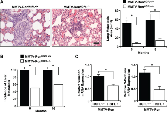 Lung and liver metastases are reduced in MMTV-RonHGFL−/− mice.