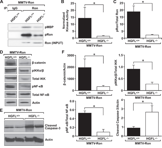 HGFL loss blunts Ron activation in mammary tumors from MMTV-Ron mice, leading to down regulation of β-catenin and the NF-κB pathway.