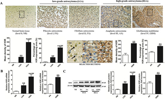 H3R was overexpressed in astrocytoma cells.