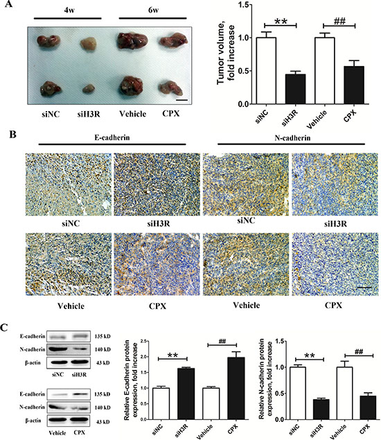 Inhibition of the H3R by the siRNA or CPX restrains the growth and EMT progression in a xenografted model.