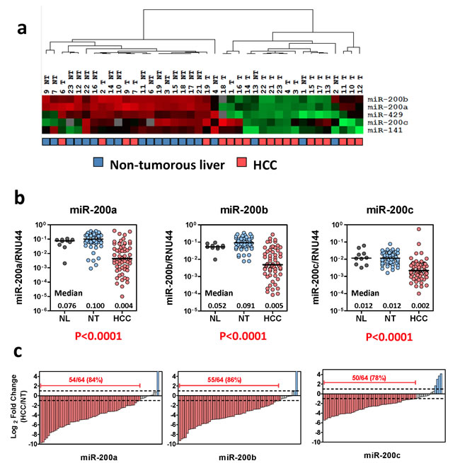 Frequent down-regulation of miR-200 family in human HCCs.