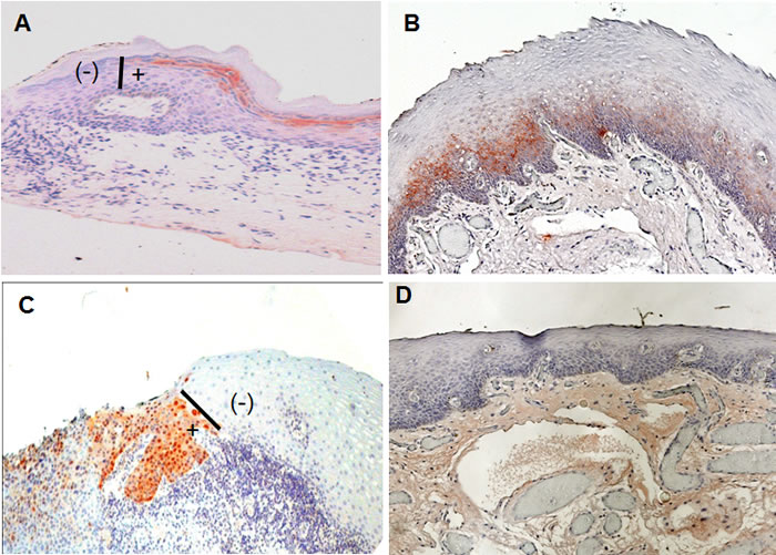 SIBLING/MMP immunoreactivity at histologically negative resection margins of OSCC.