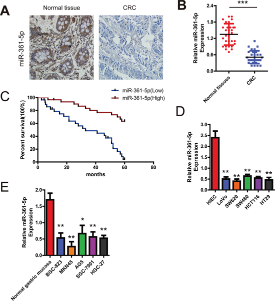 Expression of miR-361-5p and its effect on CRC patients' survival.
