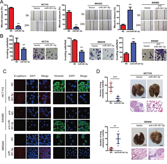 miR-361-5p suppresses invasion and metastasis of CRC and GC cells.