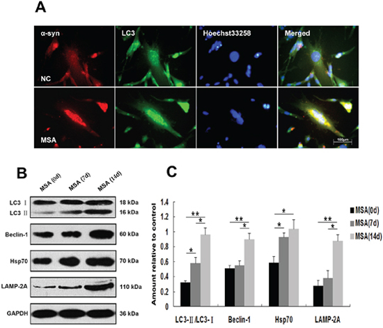 Induction of autophagy in U251 cells following exposure to MSA-CSF.