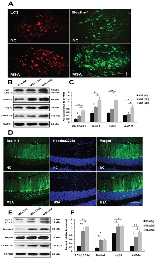 Induction of autophagy in mouse substantia nigra and cerebellum cortex following chronic MSA-CSF exposure.