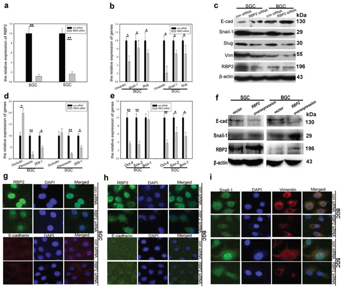 RBP2 regulates the expression of EMT-related and stemness-related genes.