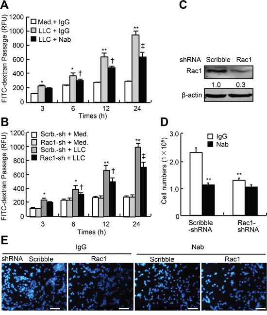 LLC-induced endothelial permeability and transendothelial migration of LLC in Rac1-knocked down HUVEC.