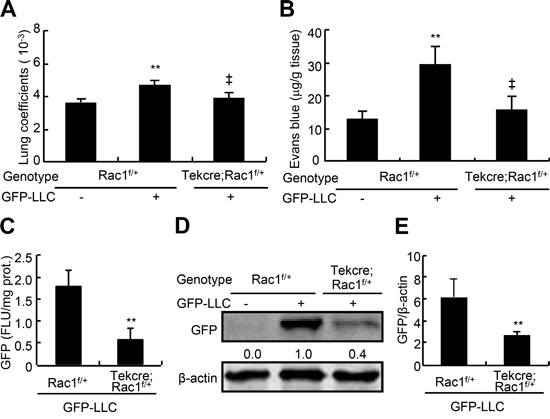 Endothelial permeability and metastasis of LLC to lungs in endothelial Rac1 knockdown mice.
