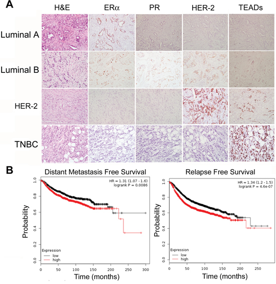 TEAD4 expression in human breast tumors.
