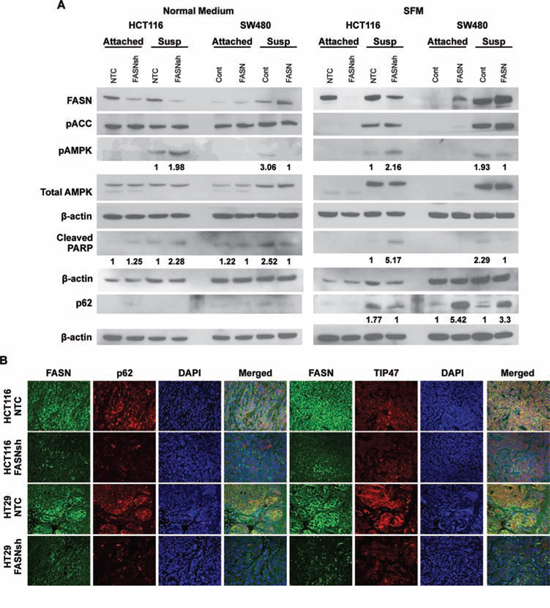 Upregulation of FASN in CRC cells is associated with a decrease in activity of AMPK and accumulation of p62.