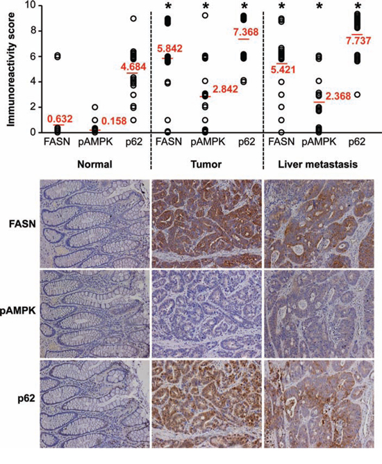 Expression of FASN significantly correlates with expression of p62 in primary CRC.