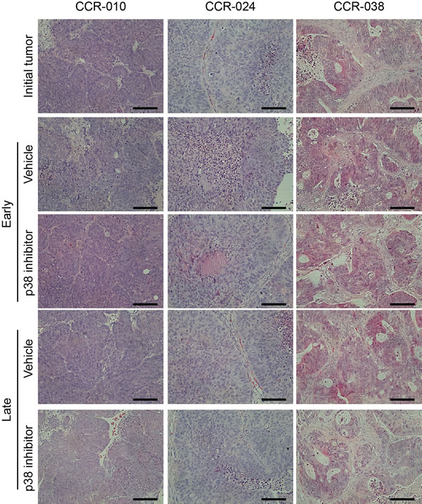 Tumor histology in PDXs treated with vehicle or p38 MAPK inhibitor.