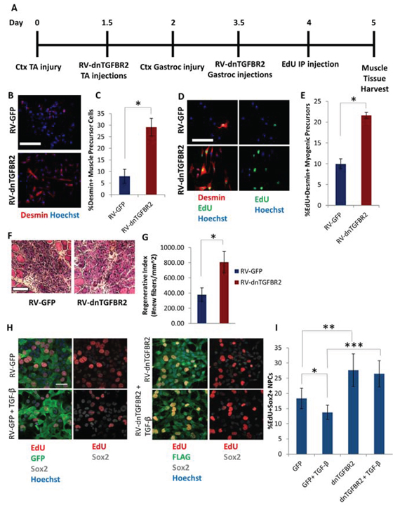 Rescue of Myogenesis in Aged Muscle and enhanced NPC proliferation by in vivo Genetic Inhibition of TGF-β Receptor II.