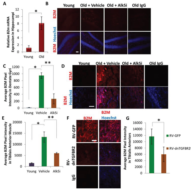 B2M Levels Decrease in Neurogenic and Myogenic Niches Following Systemic or Local Attenuation of TGF-β Signaling.