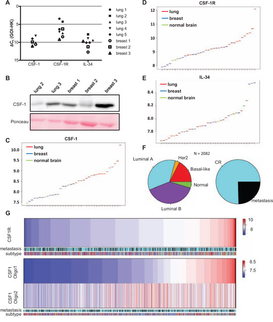 Primary breast cancer and brain metastases differ in their expression of CSF-1, CSF1-R and IL-34.