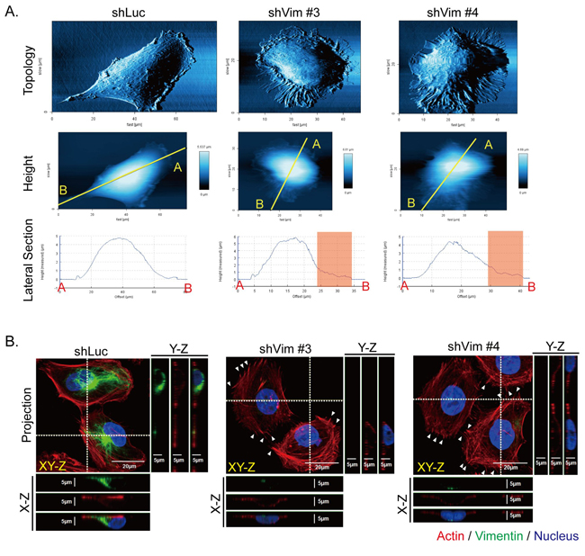 Knockdown of vimentin alters cell topology and cytoskeletal organization.
