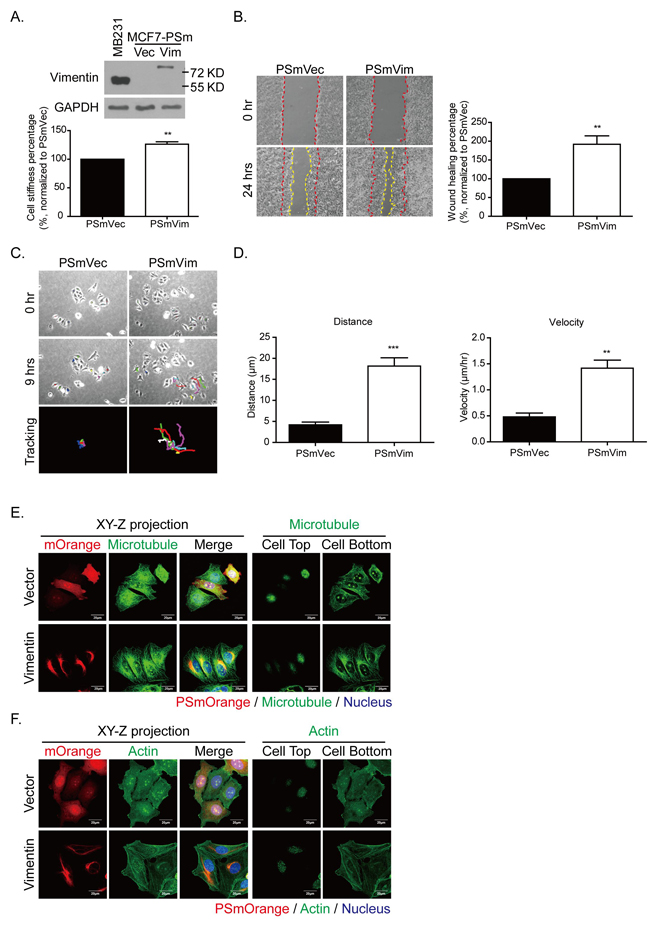 Expressing vimentin in MCF7 cells results in increased cell stiffness, cell motility, and directional cell migration.