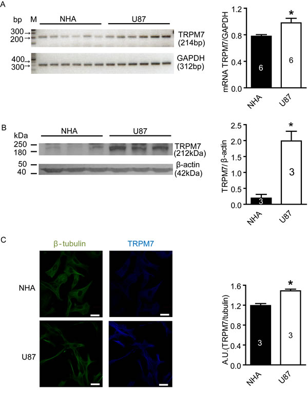 Increased expression of TRPM7 mRNA and protein in U87 cells compared to NHA cells.
