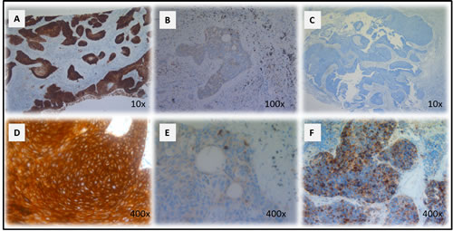 CD70 staining in primary NSCLC.