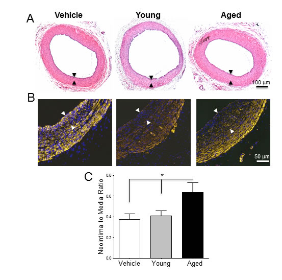 Monocytes from aged rats exacerbate post-injury neointimal hyperplasia in young arteries.