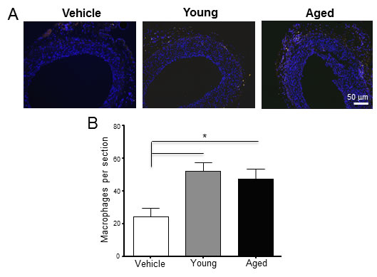 Perivascular delivery of monocytes from young and aged rats increased the number of CD68+ macrophages in the adventitia.