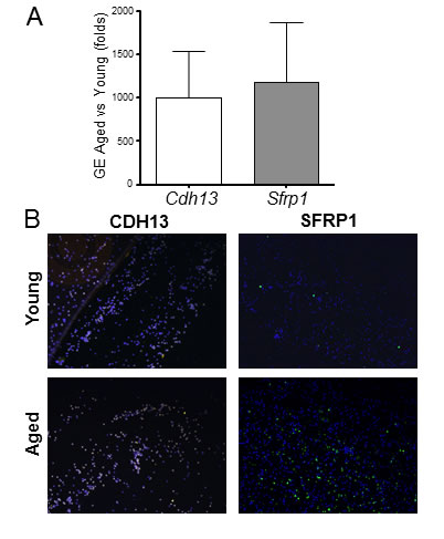Aging induces significant gene expression differences in rat monocytes.