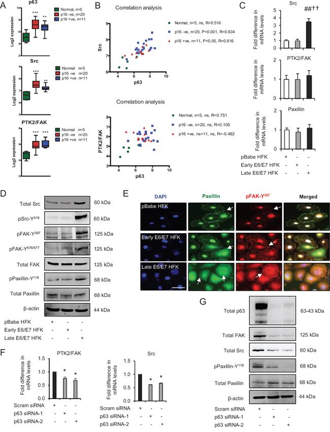 p63 transcription factors modulate Src-focal adhesion kinase (FAK) signalling.