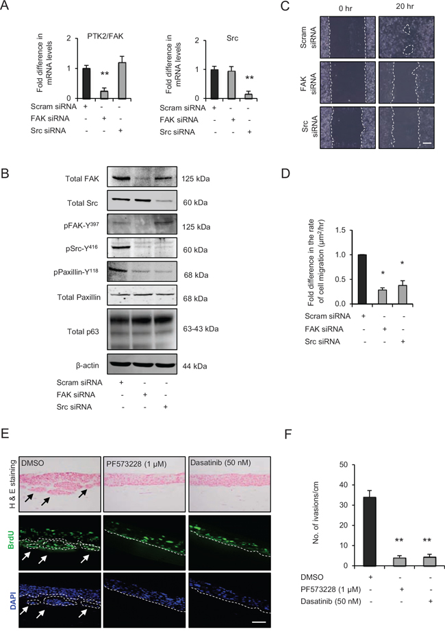 Src-focal adhesion kinase (FAK) signalling regulates cell migration and invasion.