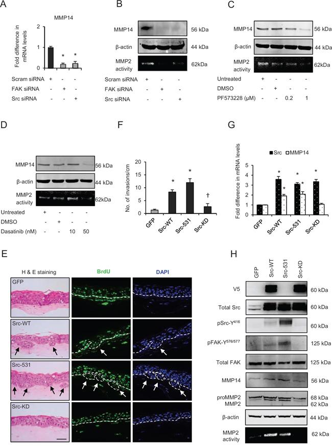Src-focal adhesion kinase (FAK) signalling regulates expression and activity of matrix metalloproteinases-14 (MMP14).