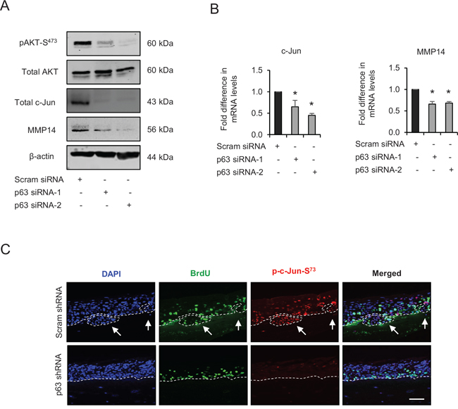 p63 regulates the expression and/or activation of AKT, c-Jun and matrix metalloproteinase-14 (MMP14).