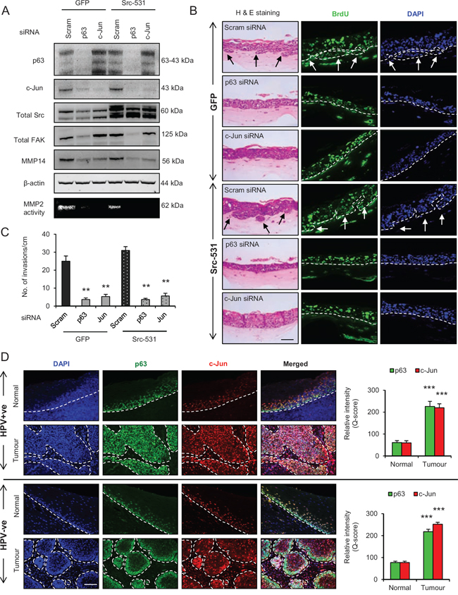 p63 regulates the Src/c-Jun/matrix metalloproteinases-14 (MMP14)-mediated extra cellular matrix (ECM) remodelling and invasion.