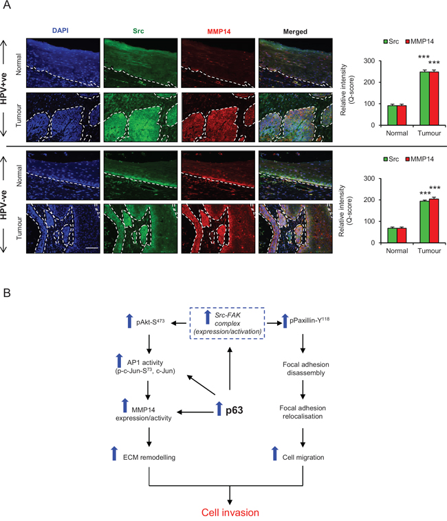 A. Immunofluorescence detection and quantification (Q-score) of Src and MMP14 in normal epithelium and tumour areas from HPV positive (+ve) and HPV negative (−ve) oro-pharyngeal squamous cell carcinomas.