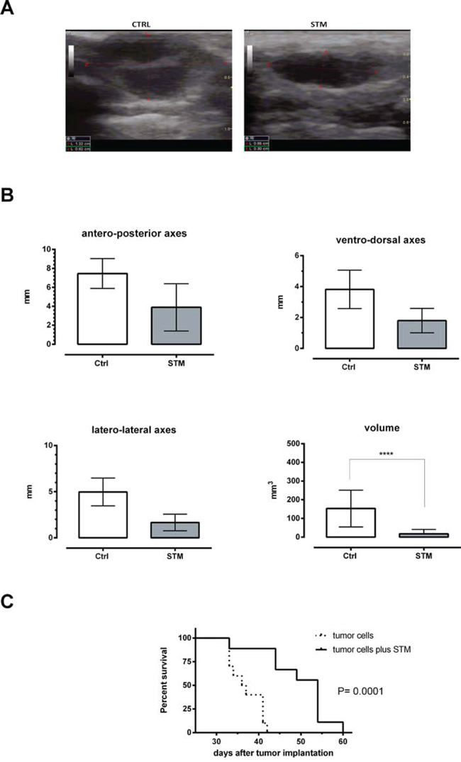 STM when co-administered with tumor cells determines a significant reduction of the tumor masses and a significant increase of average life expectancy in Balb/C mice.