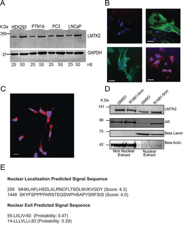 Expression and localization of LMTK2 in prostate epithelial cells.