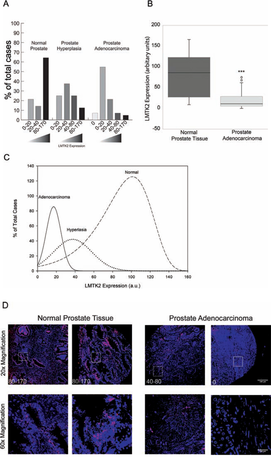 LMTK2 is down regulated in human prostate cancer.