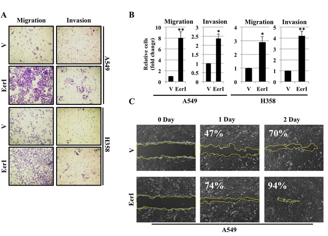 Eeyarestatin induces cell migration and cell invasion.