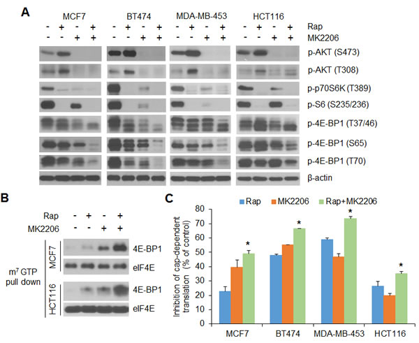 AKT inhibition profoundly enhances the inhibitory effects of rapamycin on 4E-BP1 phosphorylation and cap-dependent translation in breast and colon cancer cells.