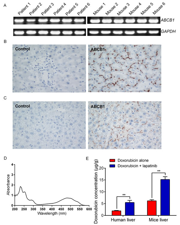 Expression levels of ABCB1 and doxorubicin accumulation in normal liver tissues.
