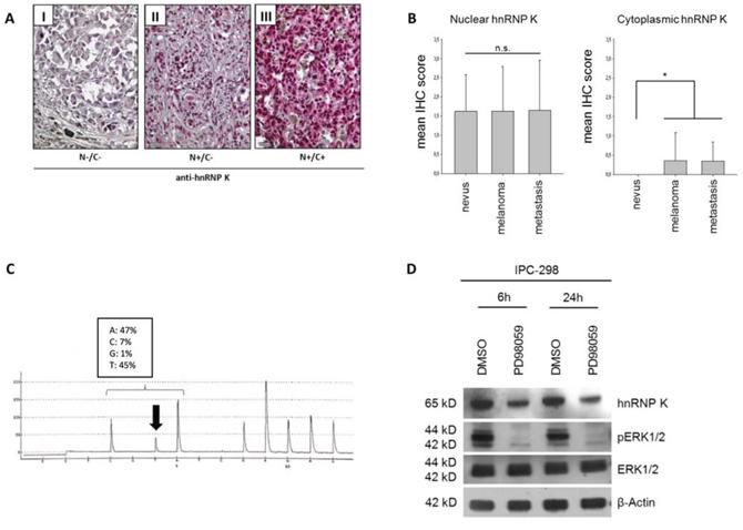 A. Expression of hnRNP K in malignant melanoma tissue specimens.