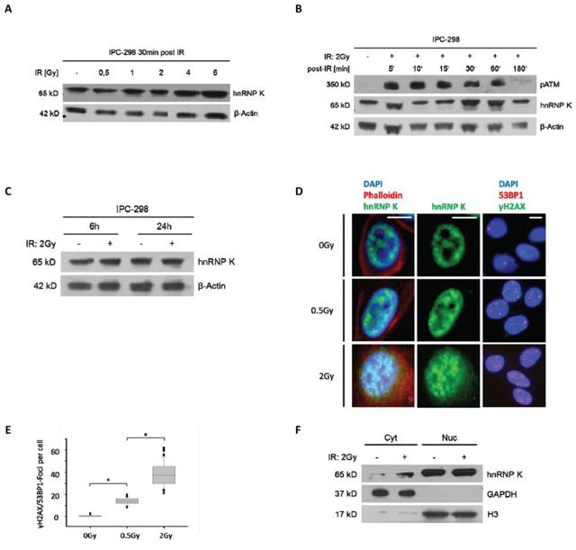 A. Immunoblotting of hnRNP K shows dose-dependent upregulation within 30 minutes after IR.