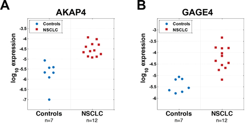 Unbiased nested PCR screening of 130 CTAs identifies AKAP4 and GAGE4 as potential candidates for NSCLC diagnosis based on a small discovery set of samples.