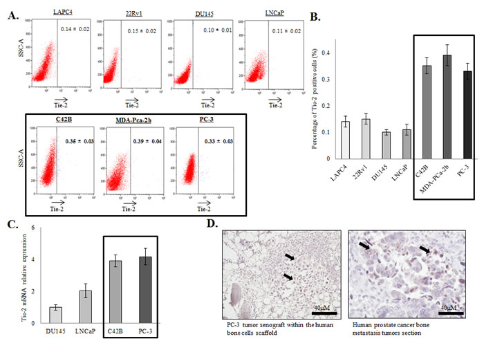 Expression of Tie-2 in prostate cancer cells.